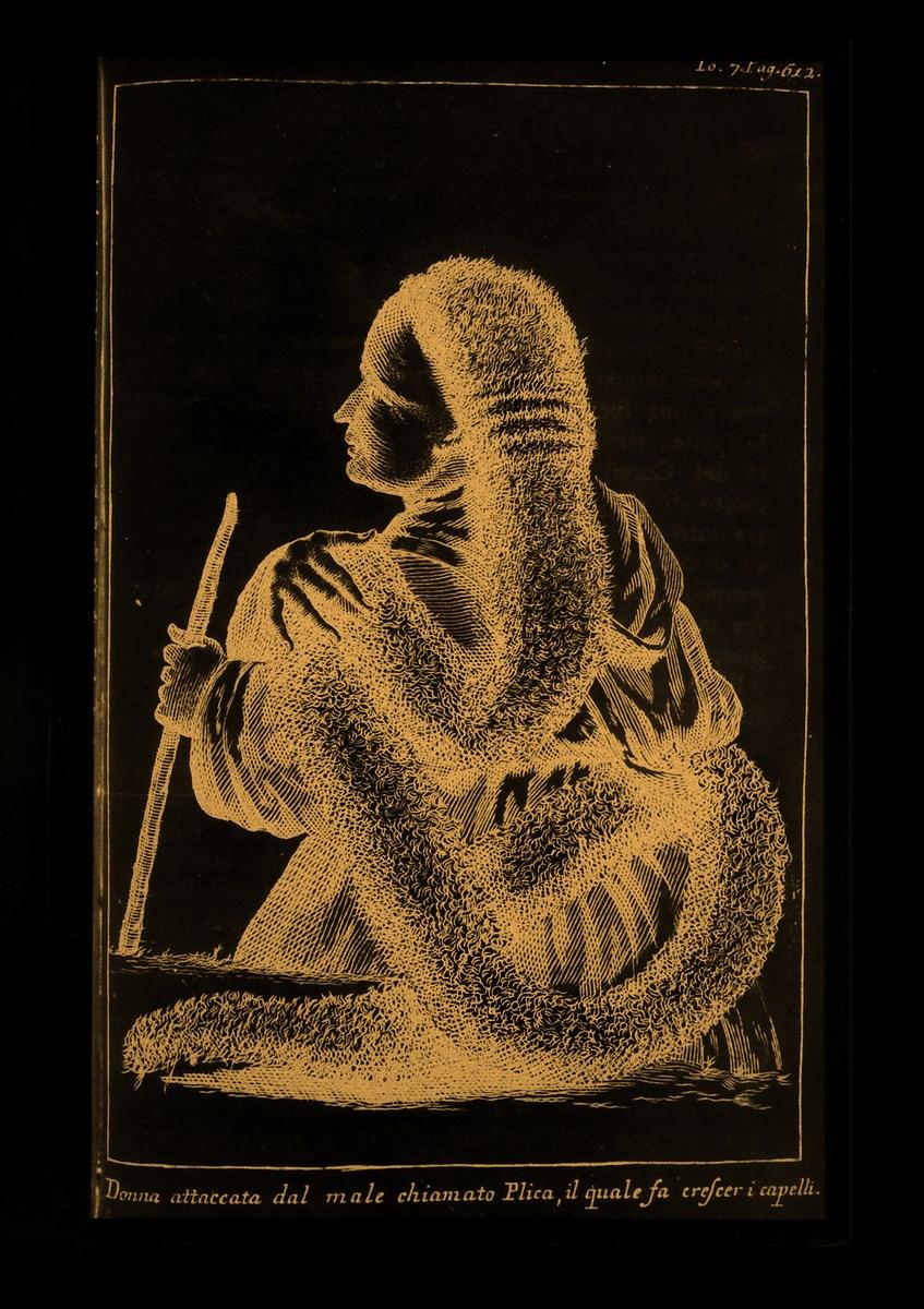 Plica polonica, rycina ze zbiorów Biblioteki Narodowej w Warszawie (źródło: materiały prasowe organizatora)