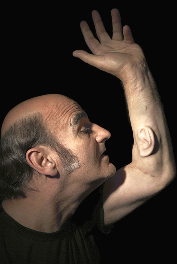 STELARC, EAR ON ARM London, Los Angeles, Melbourne 2006, Photographer Nina Sellars