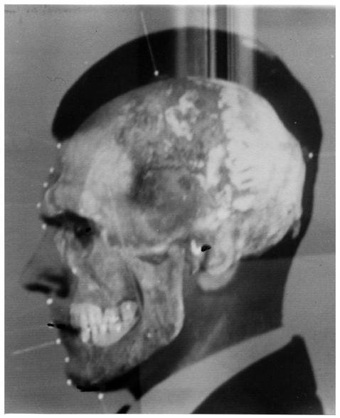 """""""Superprojekcja zdjęć i czaszki Josefa Mengelego"""", Medico-Legal Institute labs, São Paulo, 1985. Dzięki uprzejmości Mai Helmer (źródło: materiały prasowe organizatora)"""