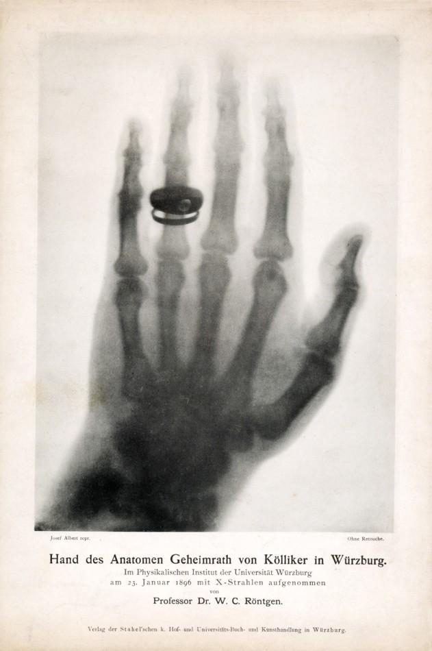 """W.C. Röntgen, """"Obraz dłoni prof. A. Von Köllikera wykonany przez W.C. Röntgena 23 stycznia 1896 r."""". Dzięki uprzejmości Deutsches Rontgen-Museum, Remscheid (źródło: materiały prasowe organizatora)"""